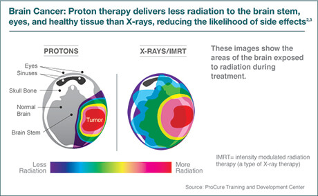 Benefits of Proton Therapy
